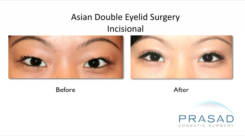 Asian Double Eyelid Surgery Before and After Incisional Female