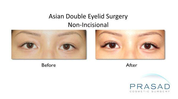 asian blepharoplasty-Surgery method