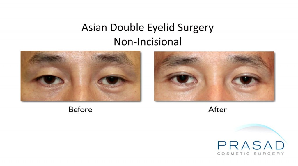 Asian Double Eyelid Surgery Before and After Non-Incisional Male