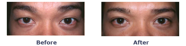 Asian Eyelid Surgery