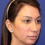 Vampire Facelift Before