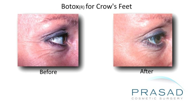 Botox injection in New York