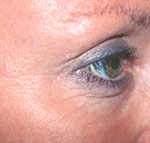 Botox/Dysprort After