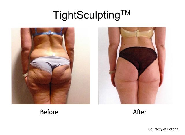 Cellulite and fat reduction