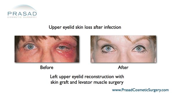 To Lift Eyelids: How To Lift Sagging Eyelids Naturally  What Is Plaque Psoriasis 2