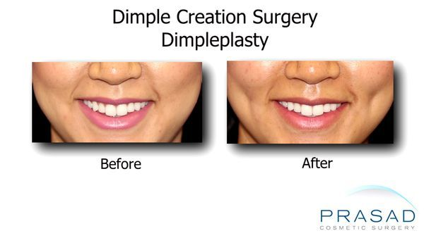 Dimple creation surgery- Before and After 1