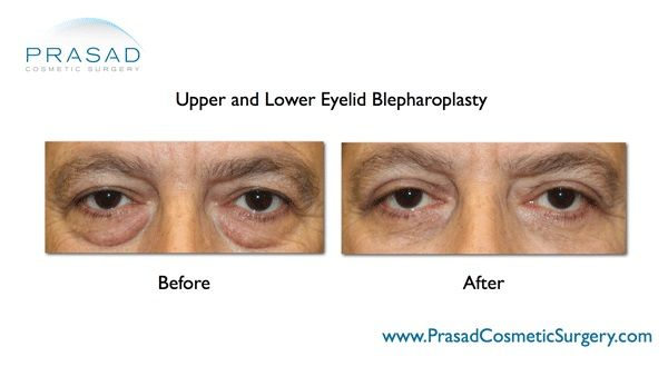lower blepharoplasty cost