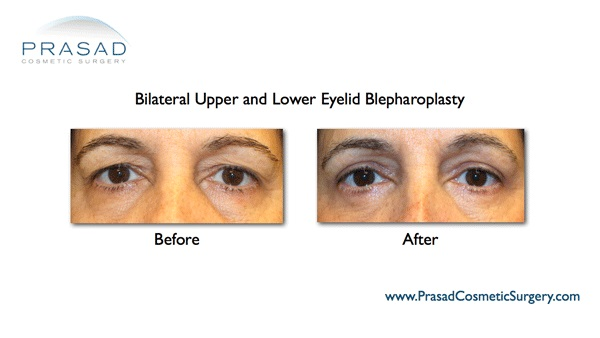 lower eyelid surgery results