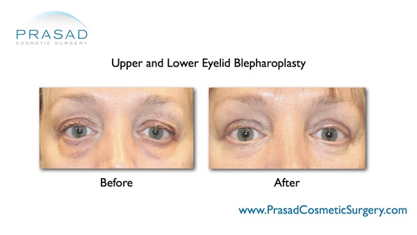 eye lift before and after surgery