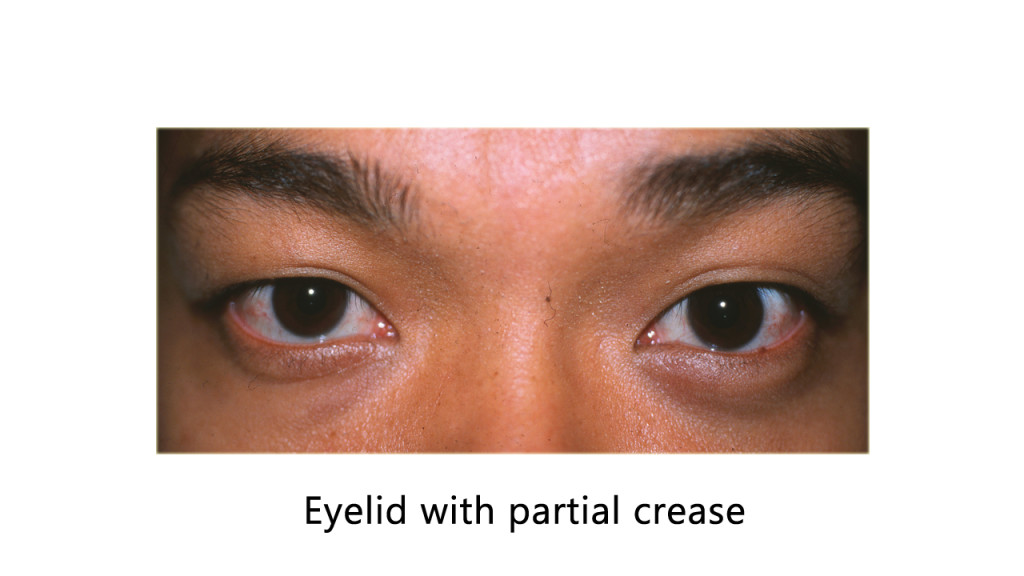 Eyelid with partial crease