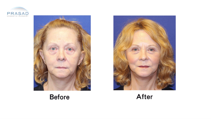 Facelift Patient 3 Before and After Front