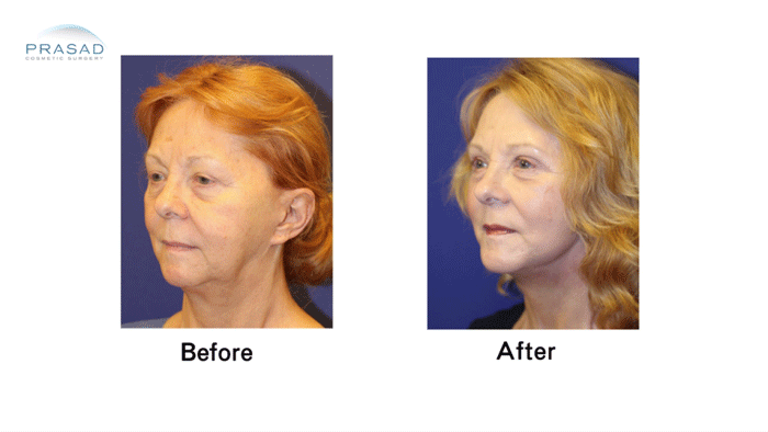 Facelift Patient 3 Before and After Three Quarter