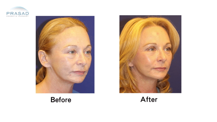 Faclift Patient 4 three quarters