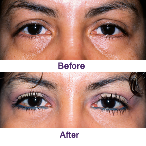 transconjunctival blepharoplasty before and after