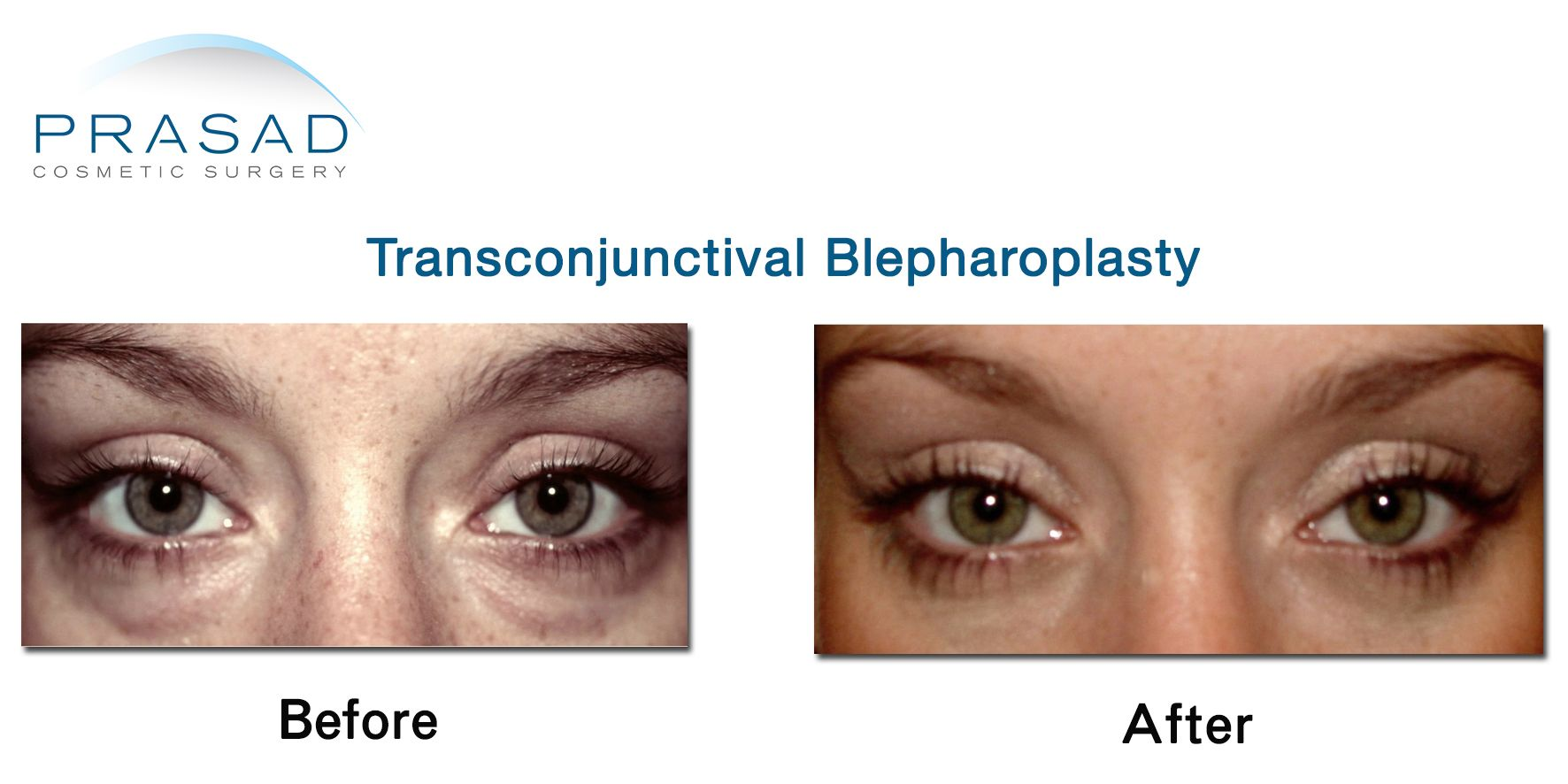 Female Transconjunctival Blepharoplasty Before and After 02 cropped Transconjunctival Blepharoplasty