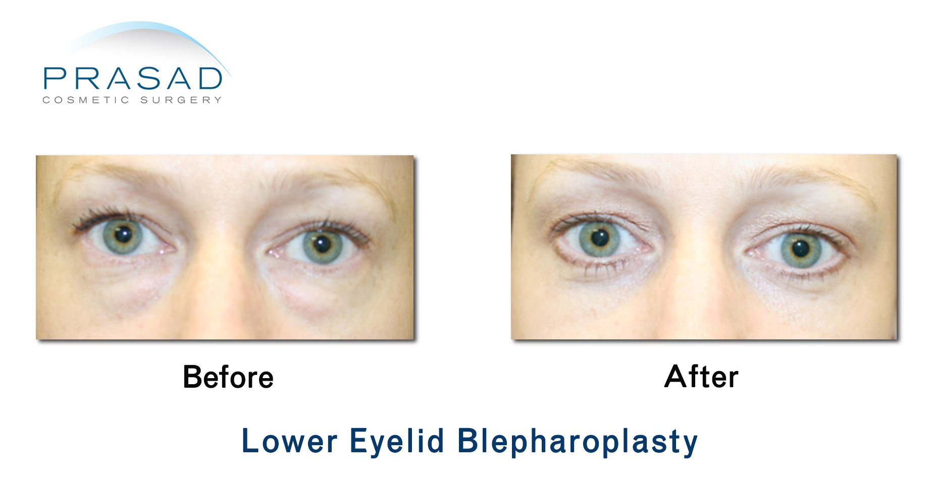 Female Transconjunctival Blepharoplasty Before and After 03 cropped Transconjunctival Blepharoplasty
