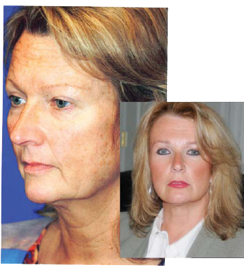 Quick Recovery Facelift