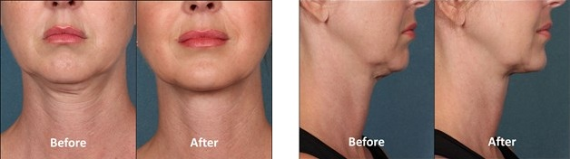 Kybella trial results