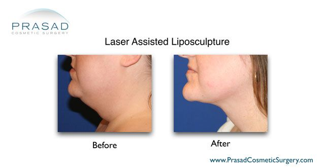 Face and neck liposculpture