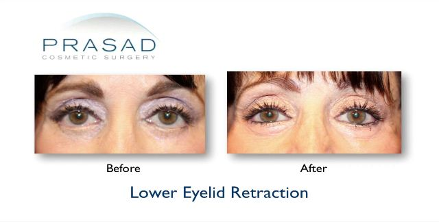 Lower Eyelid Retraction Still