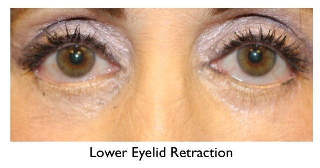 Eyelid Revision Surgery