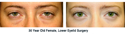Lower Eyelift Surgery New York Before and After
