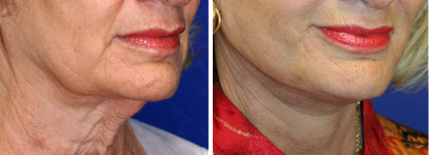 Necklift Surgery NY Before and After
