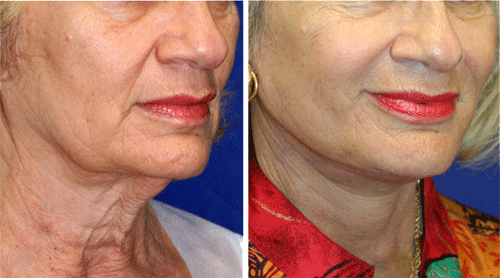 Quick Recovery Neck Lift Patient