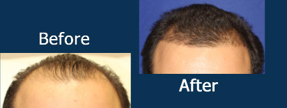 Acell Hair Restoration Before and After