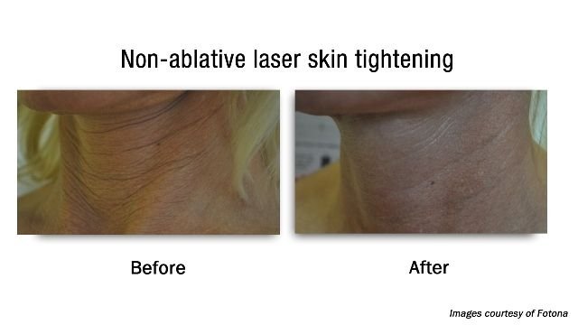 Non-ablative laser skin tightening