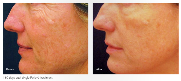 Pelleve Treatment Results
