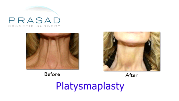 Platysmaplasty corrected still