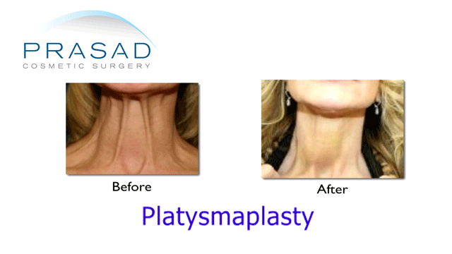 Platysmaplasty - Neck lift