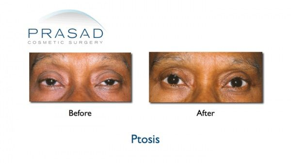 ptosis surgery  patients before  u0026 after photos