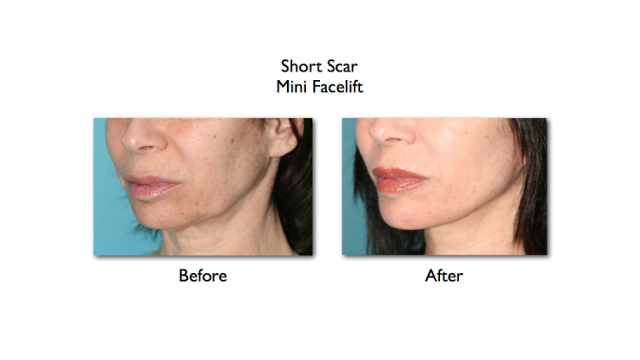 Short scar mini facelift before and after