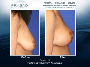 Breast Lift Surgery - Before and After - Side View
