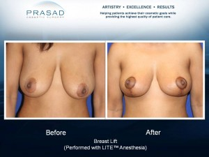 Breast Lift Surgery - Before and After -Frontal View
