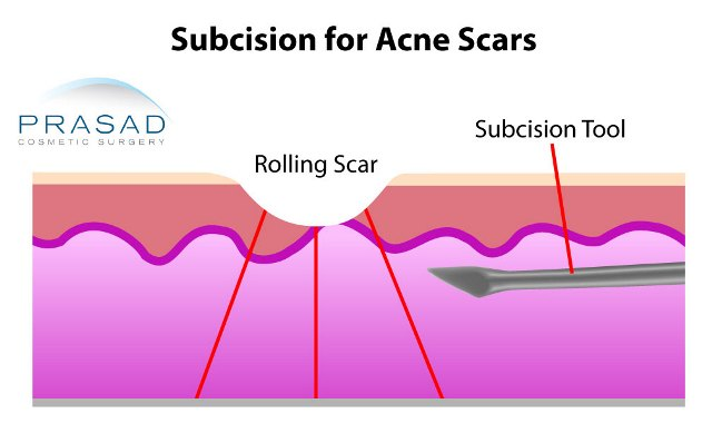 subcision for acne scars