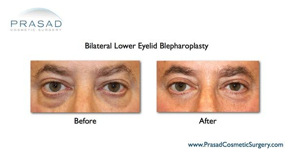 Under eye bags Removal surgery