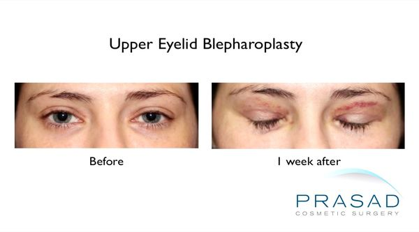 Upper Eyelid Surgery 1 week before and after eyes closed Upper Eyelift Surgery