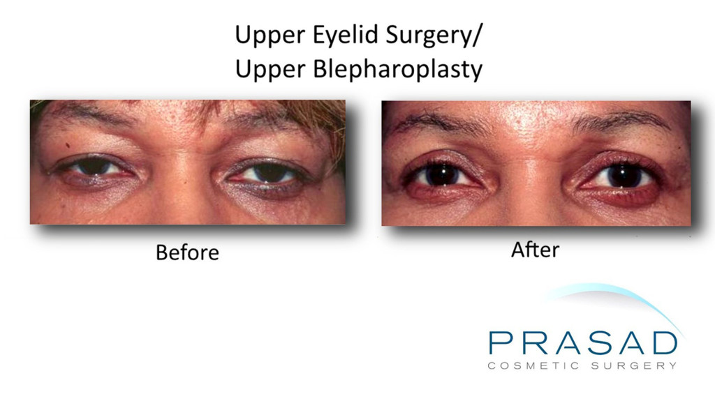 Upper Eyelid Surgery before and after dark skin female Latina 1024x575 Upper Eyelift Surgery