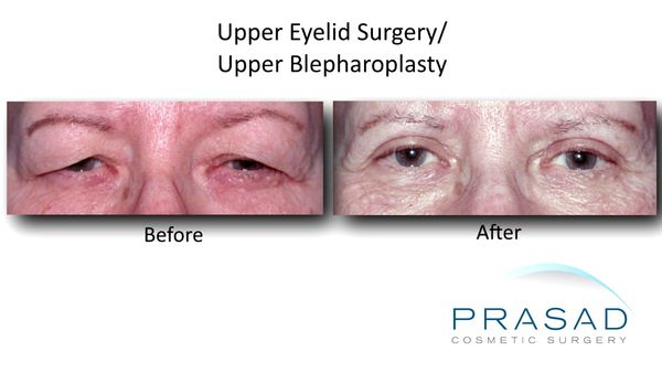 Upper Eyelid Surgery before and after female Caucasian improved vision Upper Eyelift Surgery