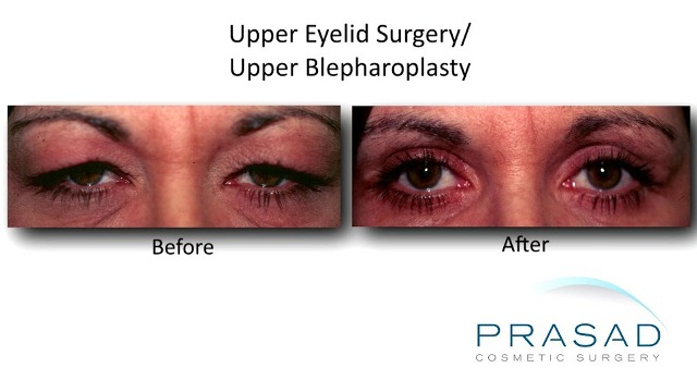 Upper Eyelid Surgery before and after female Caucasian