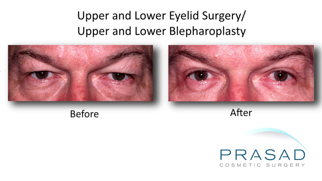 Upper and Lower Eyelid Surgery before and after male Caucasian 1024x576 Upper Eyelift Surgery