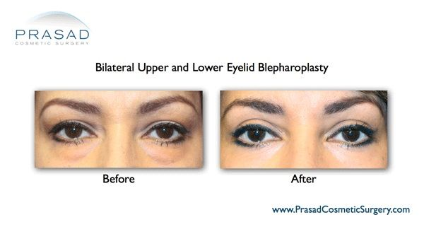 Upper and lower eyelid surgery-Female