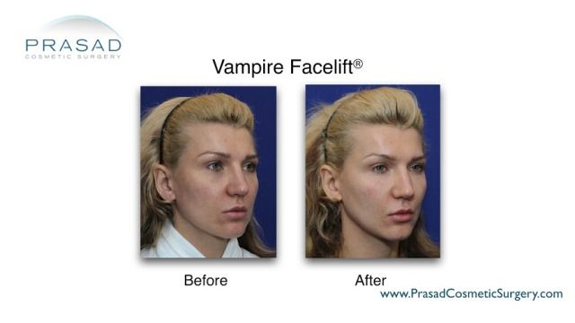 Vampire Facelift before and after results performed by Amiya Prasad MD