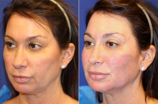 Vampire facelift by Dr Amiya Prasad left three quarters B A Vampire Facelift®