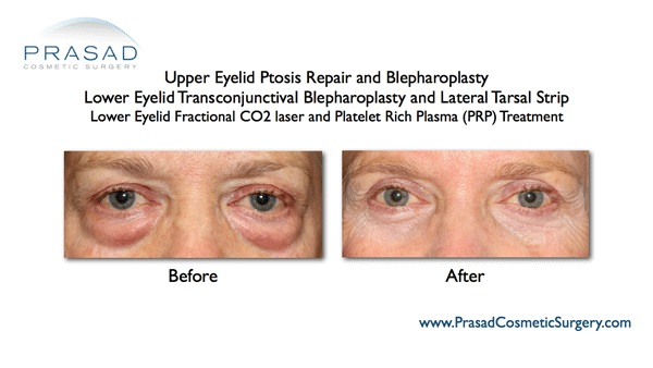 lower eyelid fractional co2 laser results