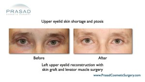 before and after upper eyelid skin grafting and ptosis repair after eyelid surgery complication performed by Dr Amiya Prasad 600p 300x169 Upper Eyelift Surgery
