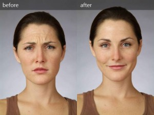 Botox Treatment for Wrinkle Reduction